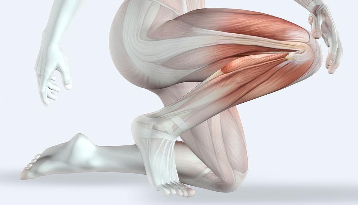 גאוט ברגל, איור של כאבי ברכיים